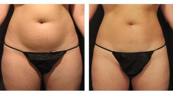 Фото до и после похудения живота