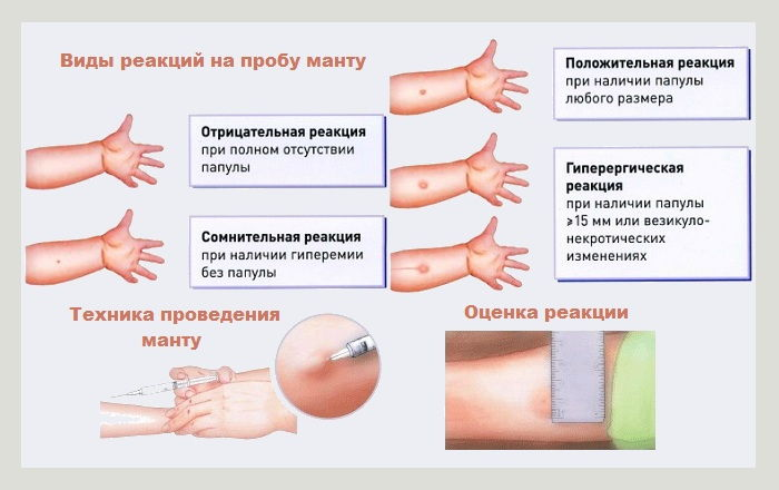 Прививка манту норма у ребенка