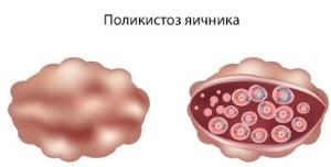 Поликистоз