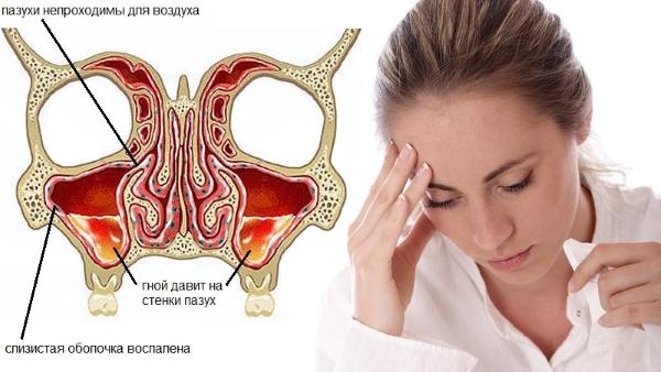 Воспаление при гайморите