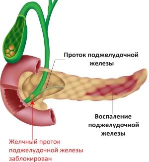 Причина панкреатита