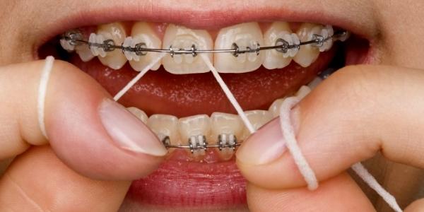 Зубная нить и брекеты
