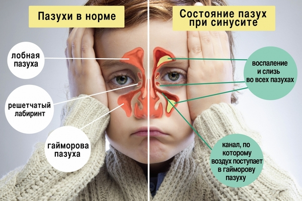 Схема пазух носа