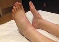 Отек ног в области стопы