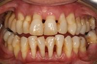 Пародонтоз - как спасти зубы