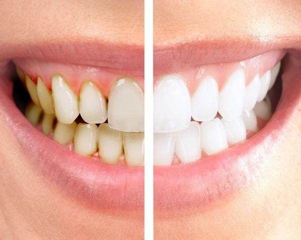 Результат чистки зубов