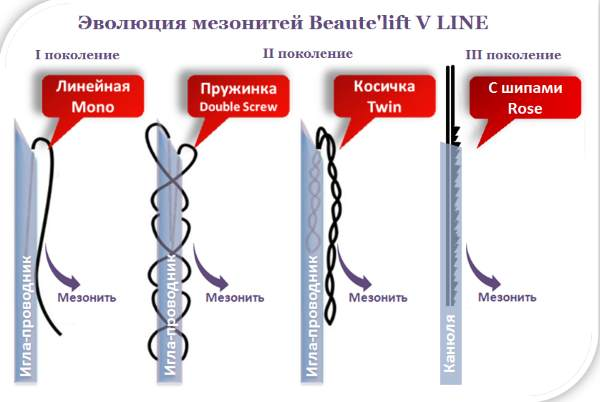 Мезонити