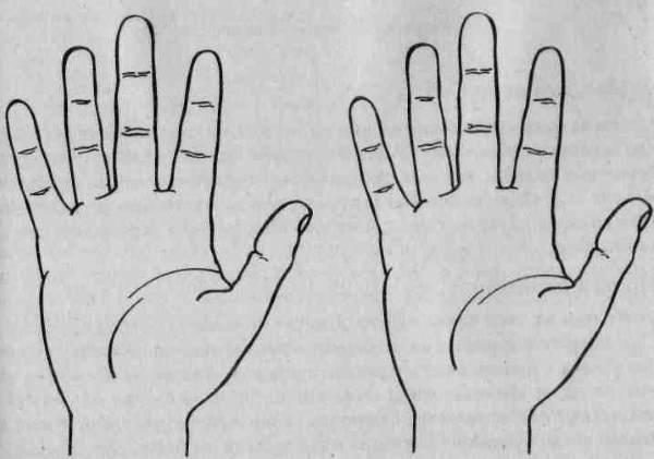 Линия жизни на руке как расшифровать знаки опасности