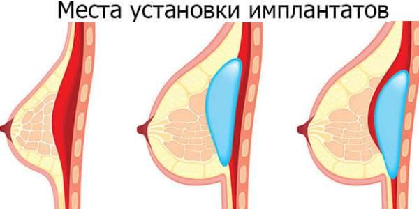 Места установки имплантов