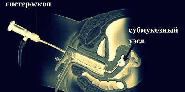 Проведение гистероскопии
