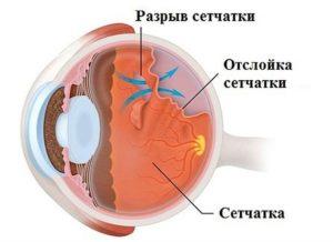 проблемы глазной сетчатки