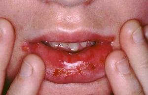 Бактериальный стоматит