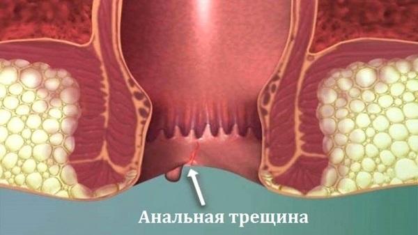 Как выглядит трещина в заднем проходе