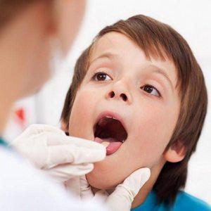 Наблюдение у врача при воспалении миндалин