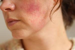 Аллергия на мазь