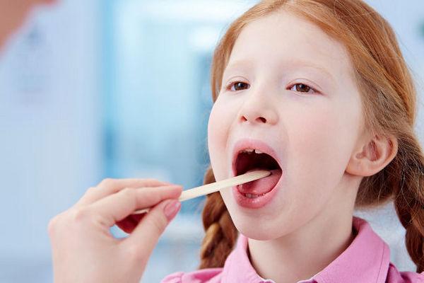 Стрептококк в горле у ребенка