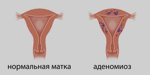 Аденомиоз внутренний
