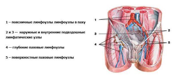 Паховые лимфатические узлы у мужчин