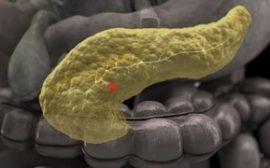 Диффузия поджелудочной железы