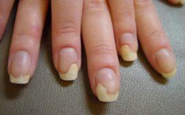 микоз на ногтях рук