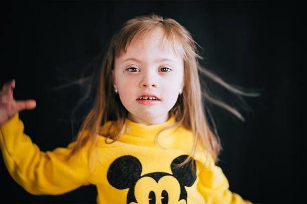 Признаки синдрома Дауна у ребенка