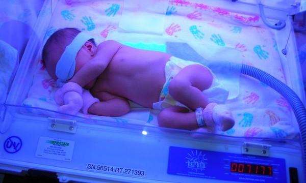 фототерапия новорожденного