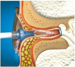 промывание ушной раковины